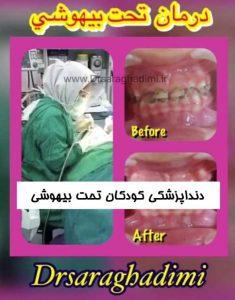 دنداپزشکی کودکان تحت بیهوشی شمال شرق تهران