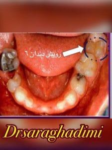 دندان شماره 6 یا اولين دندان دايمي