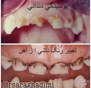 علت تیره شدن دندانها! قطره اهن یا شیر شبانه تیره شدن دندانها در اثر قطره اهن یا پوسیدگی ناشی از شیر شبانه ؟؟