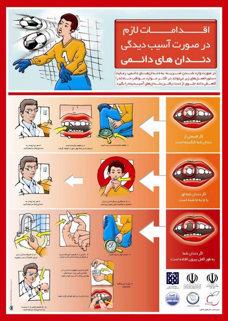 ضربه به دندانهای دایمی و اقدامات لازم برای کاهش مشکلات