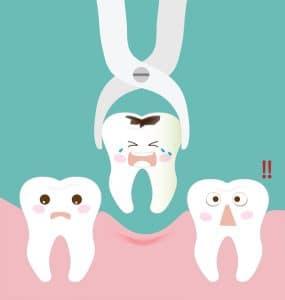 کشیدن دندان کودک