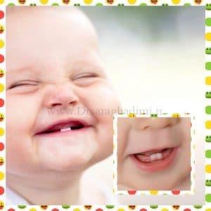 خارش حاصل از رویش دندان در کودکان