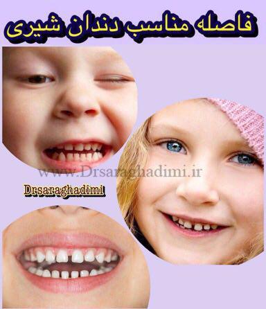 ظاهر دندان شیری
